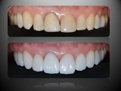 Sobre O Tratamento Que Eu Fiz Nos Dentes 2beauty Marina Smith