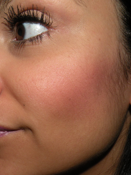 Peróxido de hidrogênio de pigmentação de pele