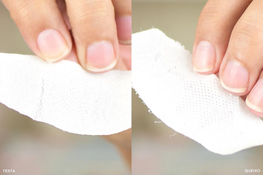 Ricca Adesivo para Remoção de Cravos para Testa e Queixo